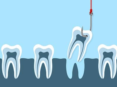 Marketing for your Endodontic Practice